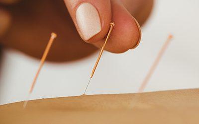 Fájdalmas az akupunktúrás tűszúrás.
